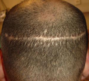 stripsurgery_scar